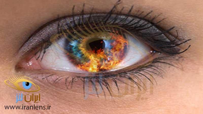 خطر گرفتن لنز چشم در برابر آتش