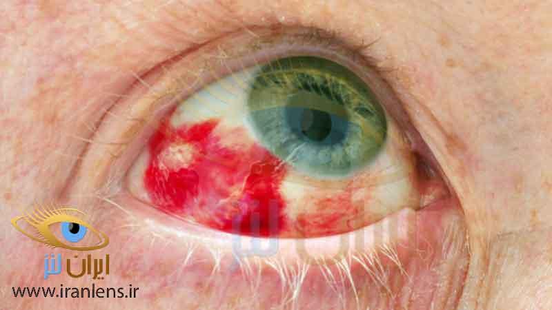 علائم خرابی لنز چشم و عفونت چشمی