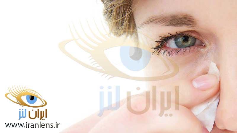 حساسیت چشمی فصلی