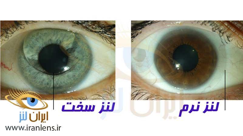 تفاوت لنز نرم و سخت