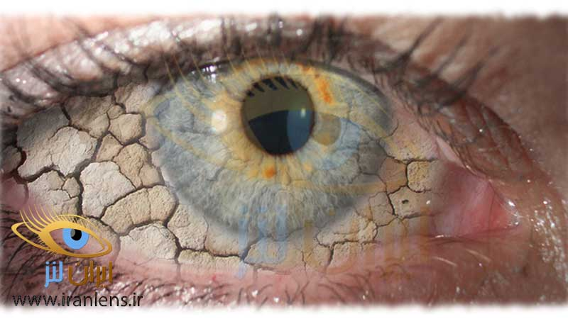 خشکی چشم چیست
