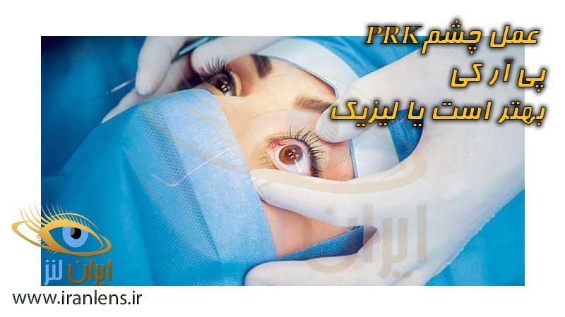 جراحی عمل PRK چشم