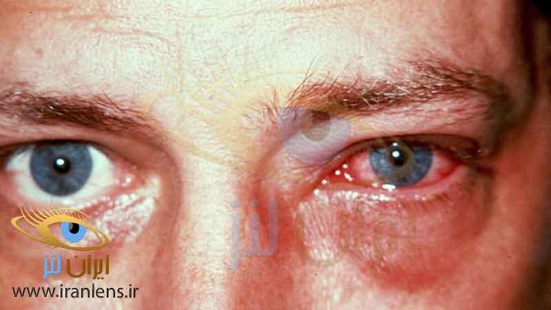 موارد منع مصرف لنز