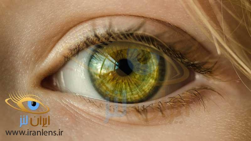 موارد مصرف لنز پانسمان