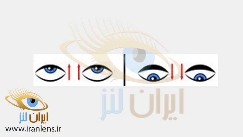 تمرین ورزش چشمی برای درمان خستگی چشم