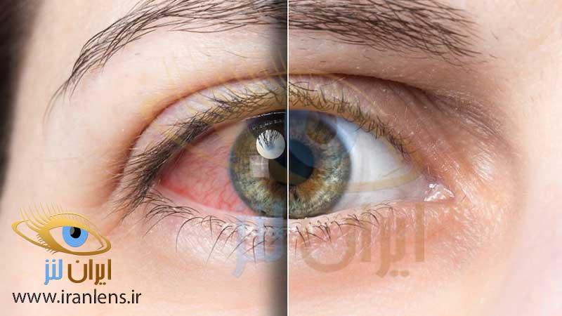 حساسیت چشمی در اثر هوای آلوده