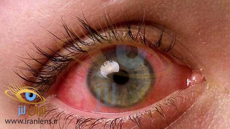 قرمزی چشم بر اثر هوای آلوده