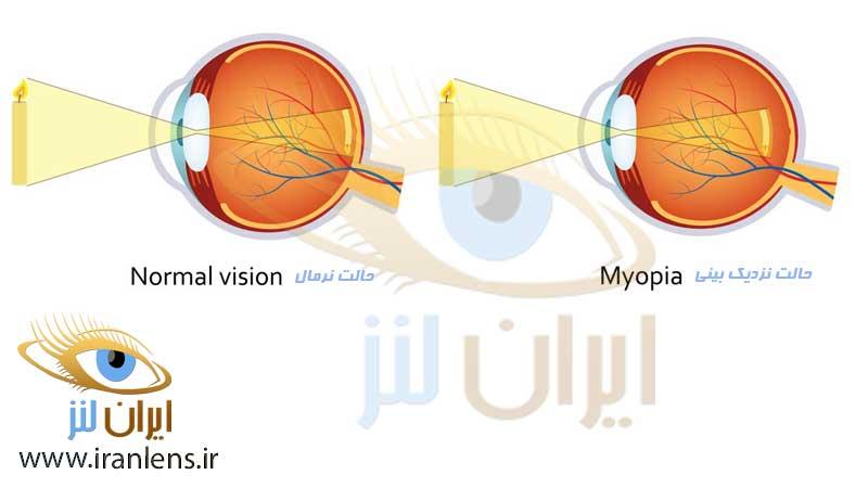 اختلال نزدیک بینی و درمان آن با لنز فصلی و لنز سالانه