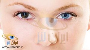جراحی تغییر رنگ چشم با کاشت لنز طبی رنگی دائمی