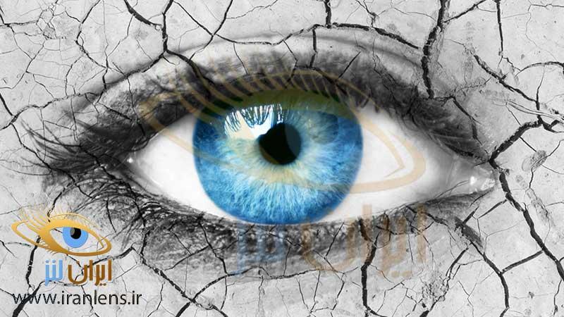 نکات مهم خرید لنز طبی برای انتخاب بهترین لنز برای خشکی چشم