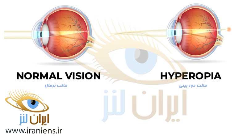 اختلال دوربینی و درمان آن با لنز فصلی و لنز سالانه