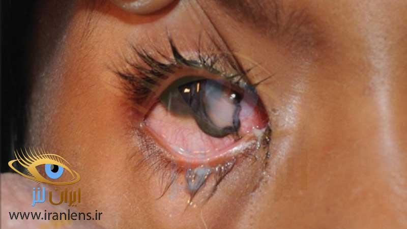 پارگی و استفاده از لنز چشم برای اولین بار