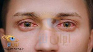 عفونت چشمی واگیردار و علائم آن