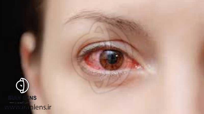درمان خانگی عفونت چشم کراتیت