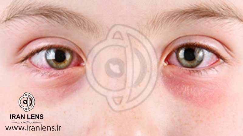 درمان خانگی عفونت چشم ورم ملتحمه یا چشم صورتی