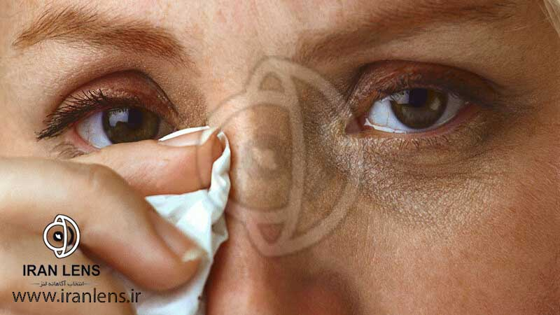 علائم عفونت چشمی