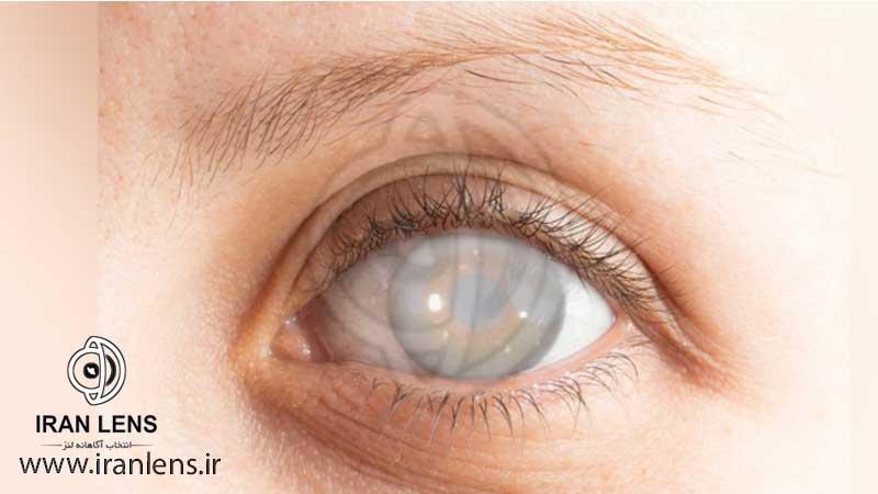 بیماری چشمی آب مروارید یا کاتاراکت