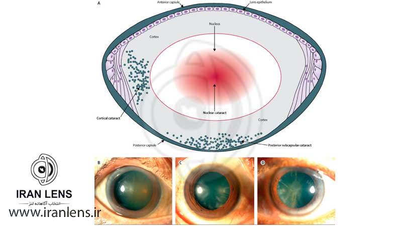 جنس لنز چشم