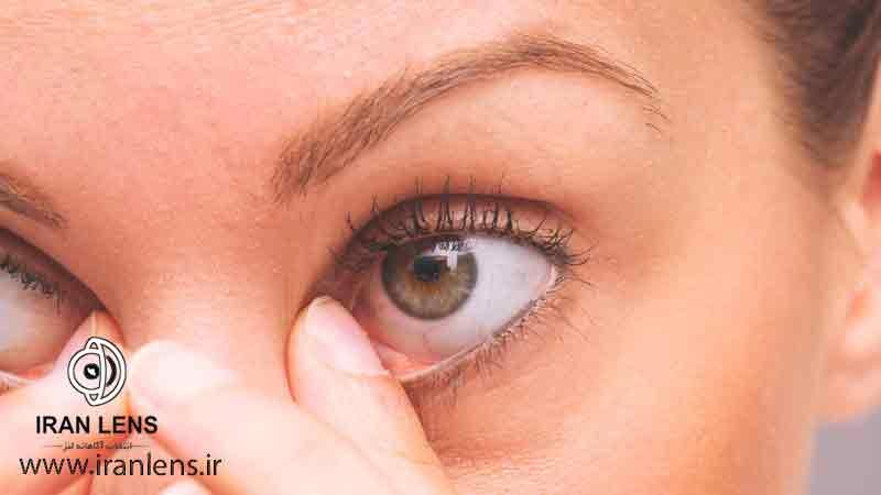 معایب جراحی لنز داخل چشمی ICL