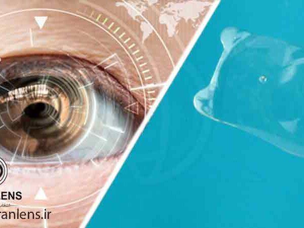 لنز داخل چشمی icl دائمی