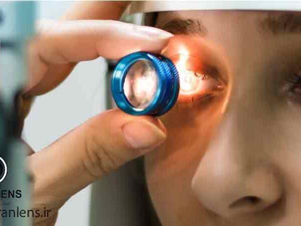 انواع بیماری های چشمی