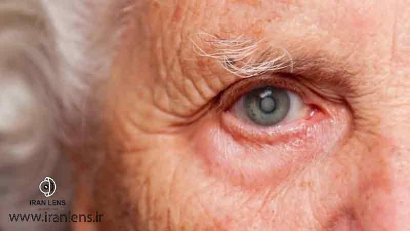 بیماری آب سیاه چشمی