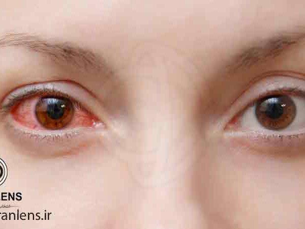 حساسیت چشم به لنز