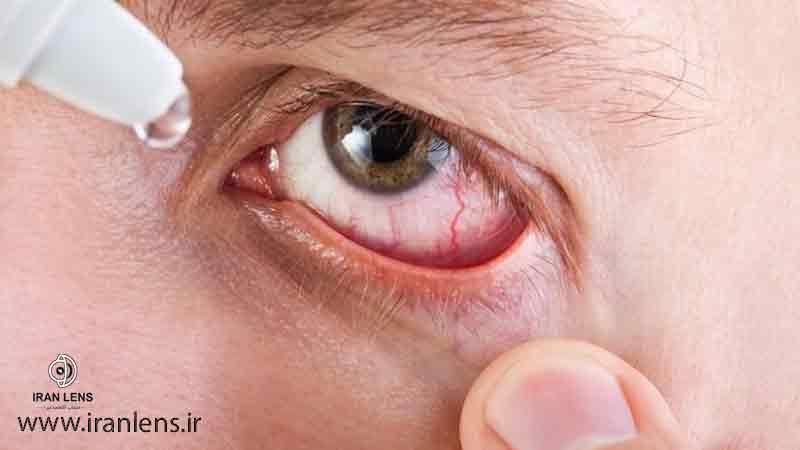 درمان دارویی فشار چشم