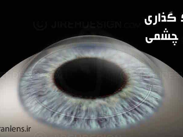 رینگ گذاری داخل چشمی